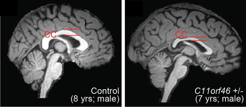 Healthy Human Brain