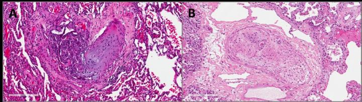 Hematoxilin-Eosin Staining of Human Formalin-Fixed and Paraffin-Embedded Lung Tissue