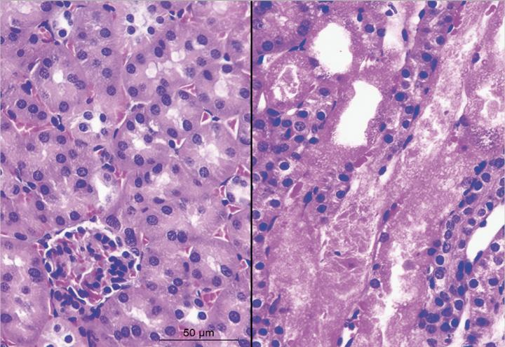 Normal vs. Injured Kidney Tissue