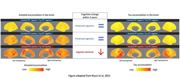 Brain imaging, Alzheimer's disease