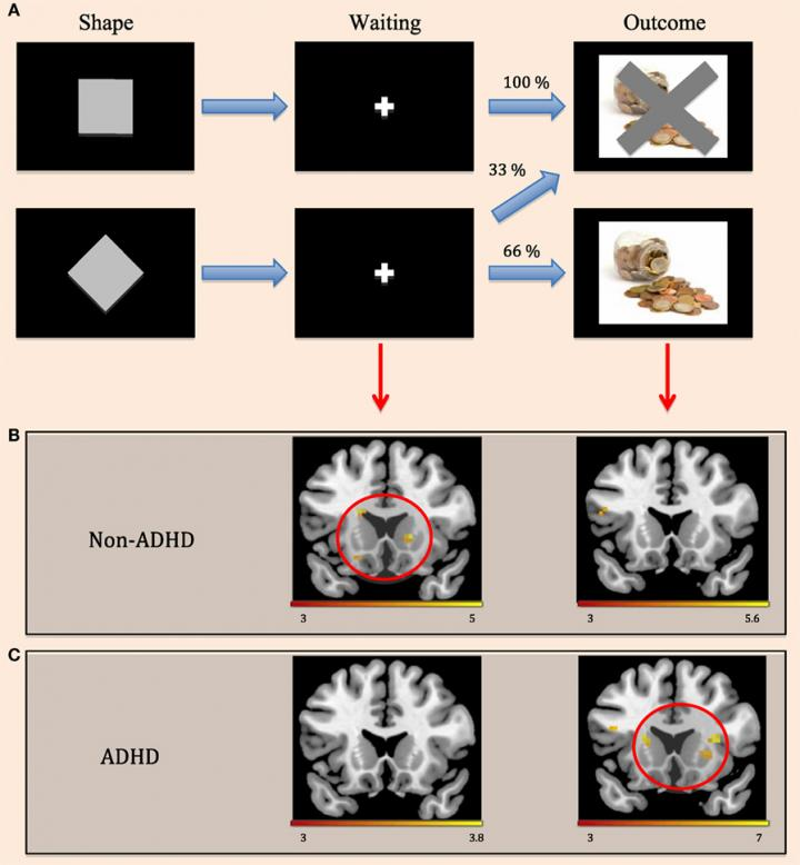 Principle Behind the fMRI Scan Experiment About the Activation of the Striatum in the Anticipation o