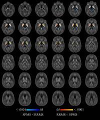 Quantitative Susceptibility Maps w/in Thalamus, Caudate, Globus Pallidus, & Putamen (2 of 3)