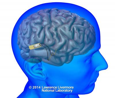 DARPA Selects Lawrence Livermore to Develop World's First Neural Device to Restore Memory