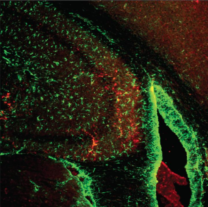 Protein Enhances Memory