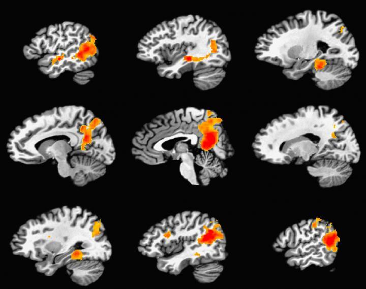 Durable Memory Areas Of Brain