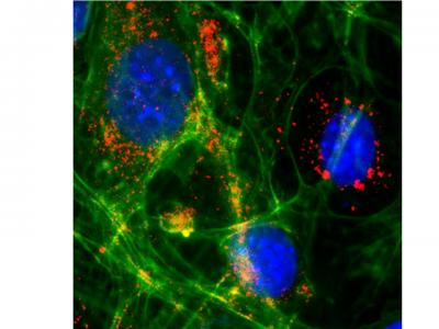 Cerebral Endothelial Cells in Cell Culture