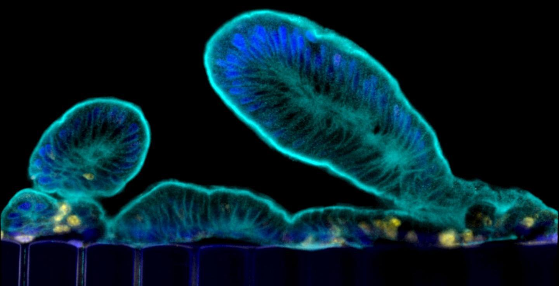 Primary Human Intestine Engineered On an Organ Chip