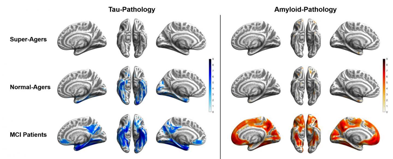 Tau and Amyloid Distribution Patterns