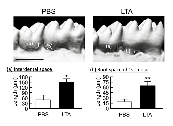 LTA induces alveolar bone loss in mice