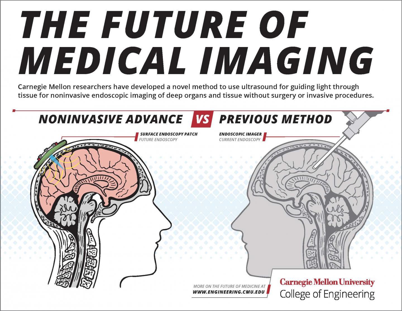 Brain Endoscopy Methods