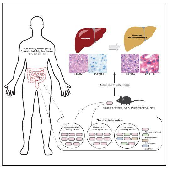 Non-Alcoholic Fatty Live Disease Graphical Abstract