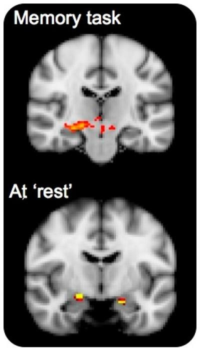Brain Network Activity for APOE4 Carriers and Non-Xarriers