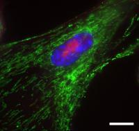 Senescent Fibroblast Cells