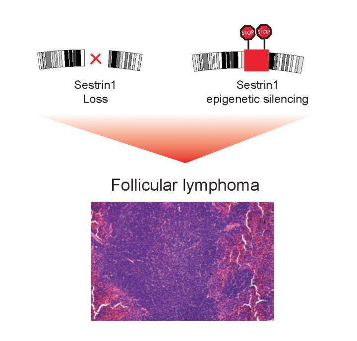 Problems with the Sestrin1 Gene Lie Behind Follicular Lymphoma