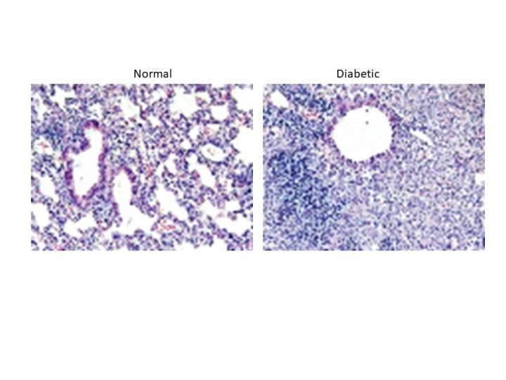 Inflammation in Lungs of Diabetic Mouse Vs. Control