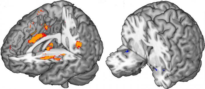 Brain Biomarkers
