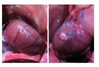 Hearts with and without adhesions