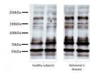 Representative Immunoblots of Platelet Tau with Tau-5 Antibody