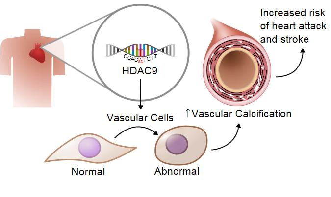 Gene Linked to Aortic Calcification and Cardiovascular Disease