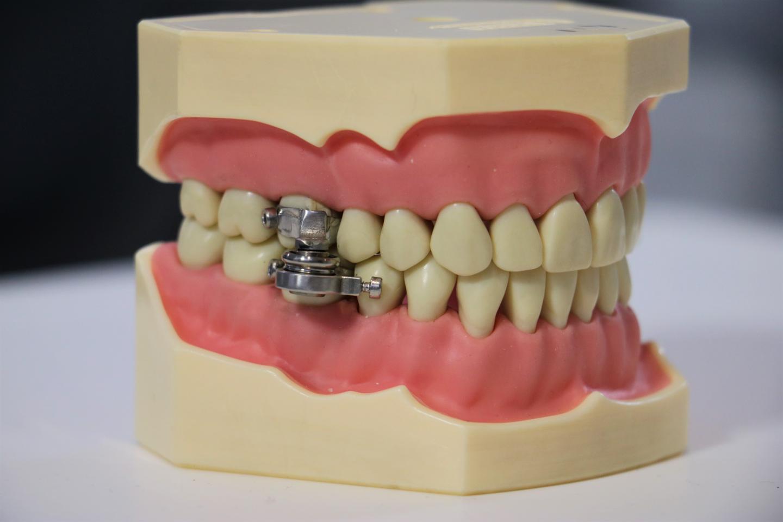 Intra-oral device, DentalSlim Diet Control 1