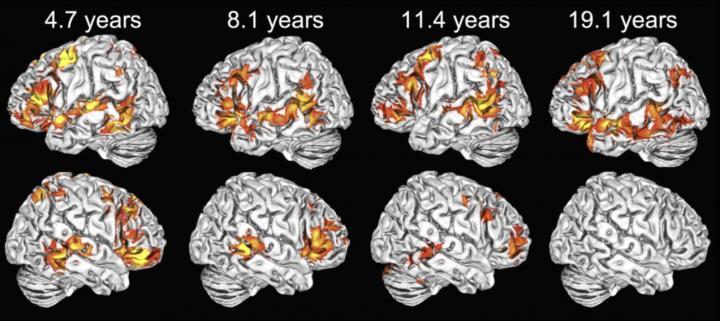 fMRI Brain Activation Map