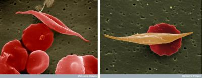 Normal and Sickle Red Blood Cells