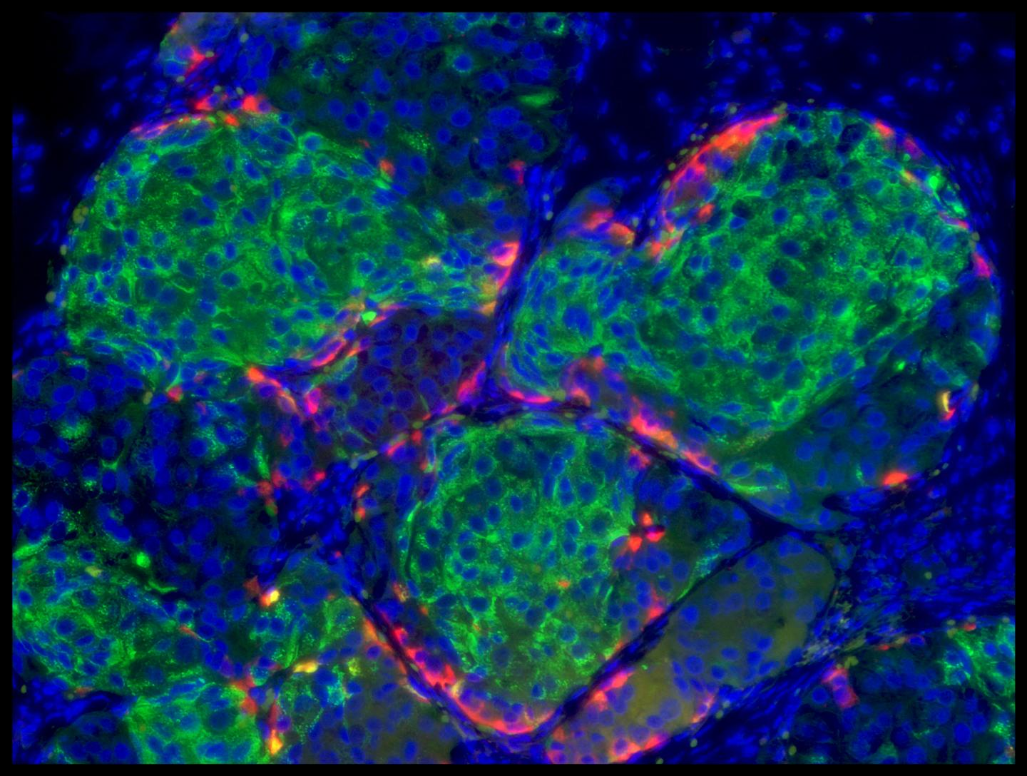 Human Stem Cell Derived Insulin Producing Beta Cell