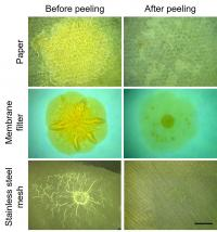 Biofilms Before and After Removal