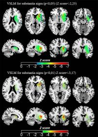 Iron Measurements with MRI Reveal Stroke's Impact on Brain (3 of 3)
