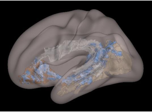 Child Brain Image