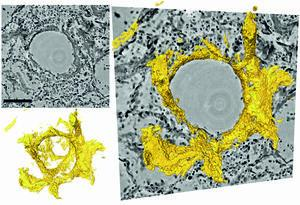 Cross Sections of Lung Tissue in Grey and Yellow