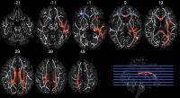 Image 1 Axial MRIs