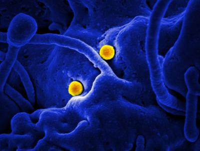 MERS-CoV Particles