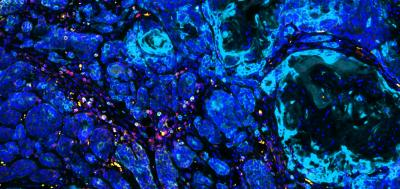 Carcinogen-exposed cells provide clues in fighting treatment-resistant cancers
