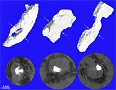 Micro-Tomography