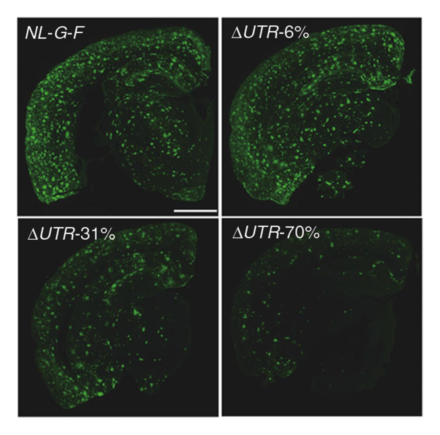 Amyloid-beta (Aβ) Pathology in the Mouse Model of Alzheimer's Disease (AD)