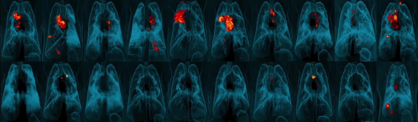 Images of Animal Lungs Showing Substantial Areas of Tb Infection or Very Little or No Infection