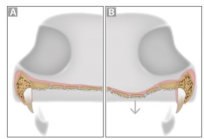 Thematic Diagram Showing Denticulate Plates