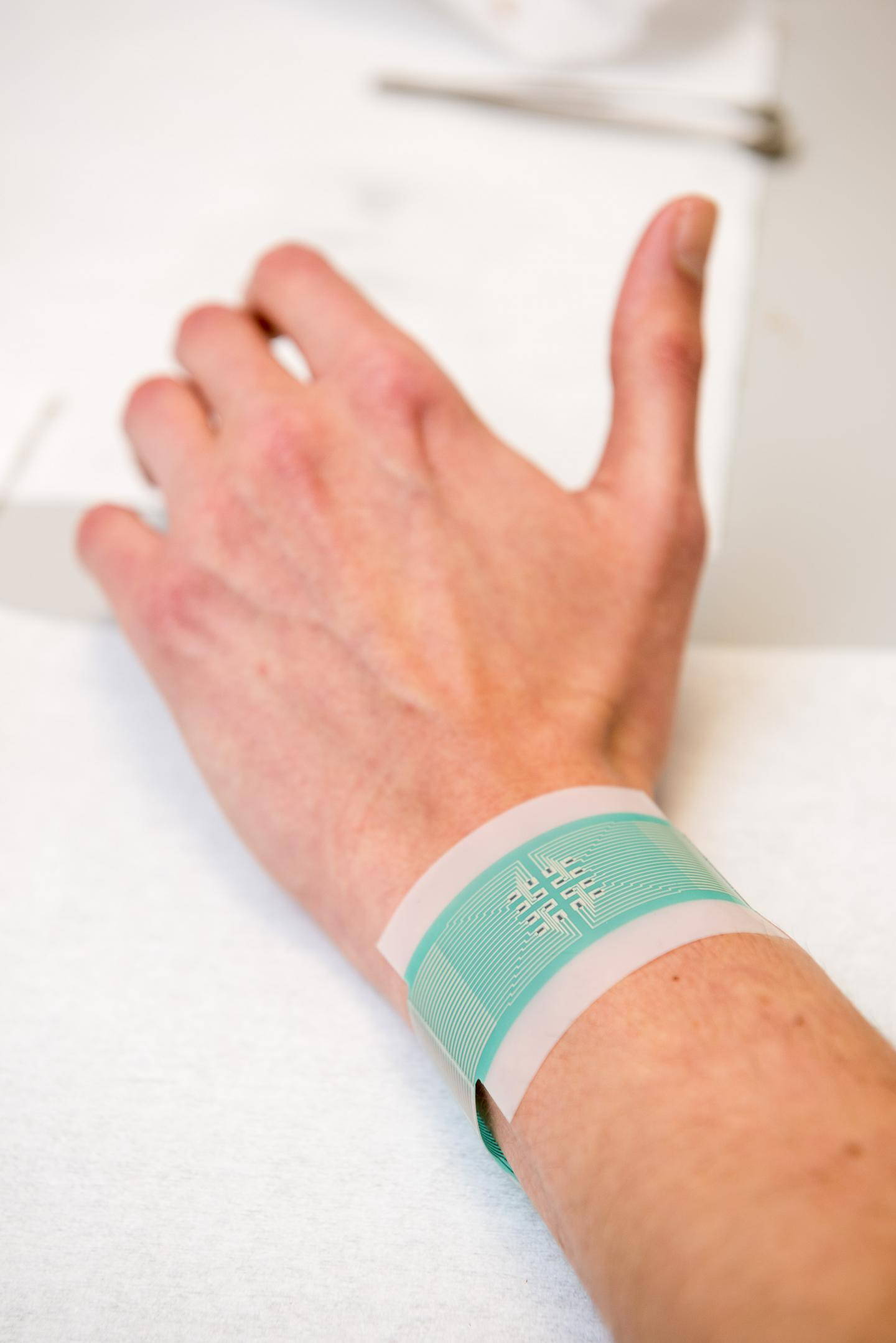 Bloodless Diabetes Monitor Patch