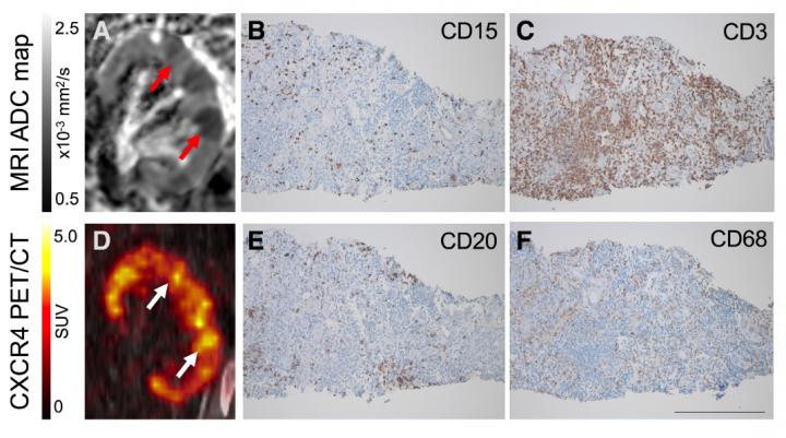 Renal Leukocyte Infiltration in PET and MR Imaging