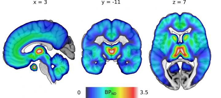 Distribution of μ-Opioid Receptors in the Human Brain