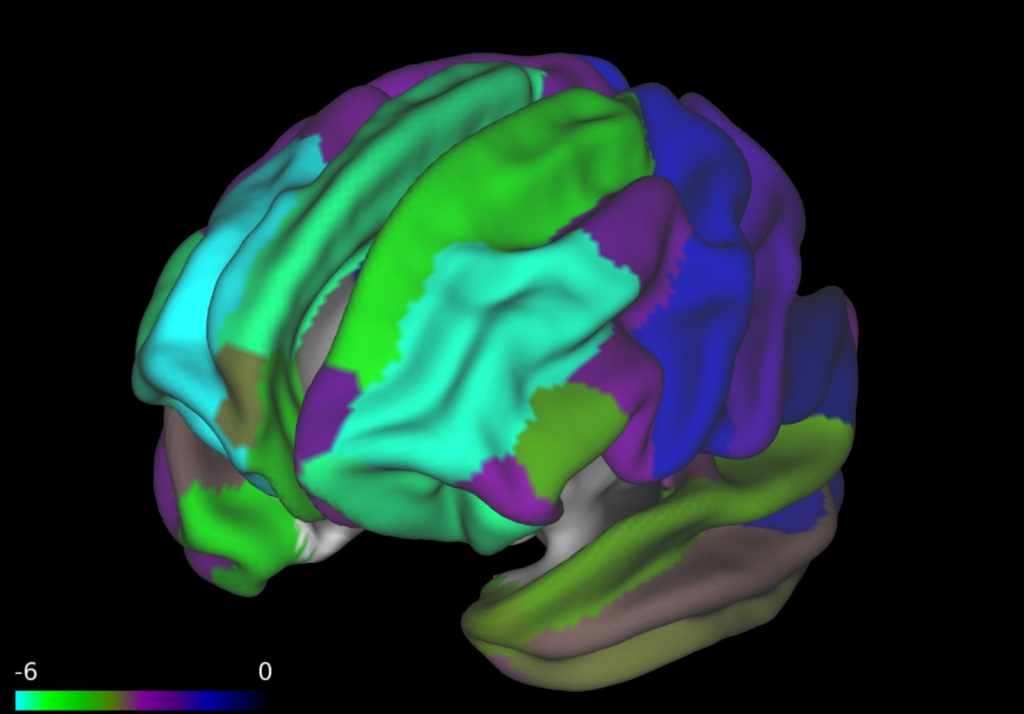 A Bran Scan from a New Study Shows a Thinner Prefrontal Cortex in Children with Higher BMI