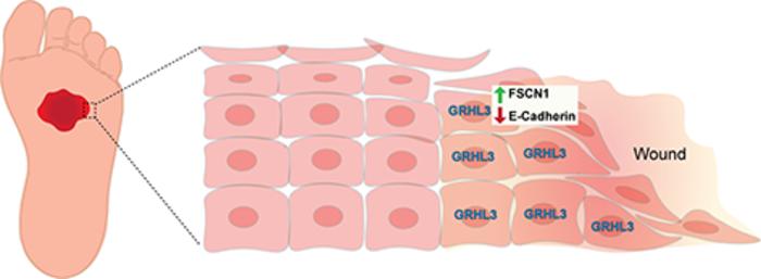 GRHL3/FSCN1/E-cadherin pathway