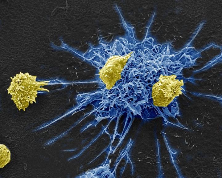 HIV Immunotherapy