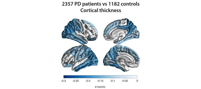 brain tissue damage patterns