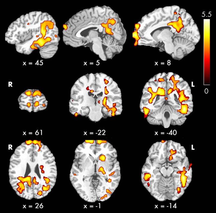 Image of Brain Blood Flow in Pediatric Patients with Chronic Kidney Disease