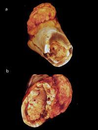 Metatarsal Cancer