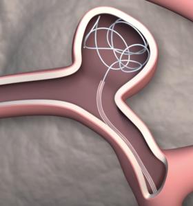 Catheter simulation