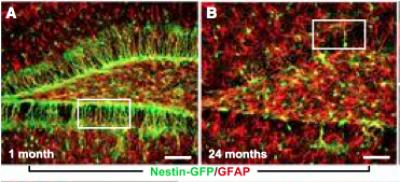 Age-dependent Alterations in the Numbers of Adult Brain Stem Cells and Astrocytes