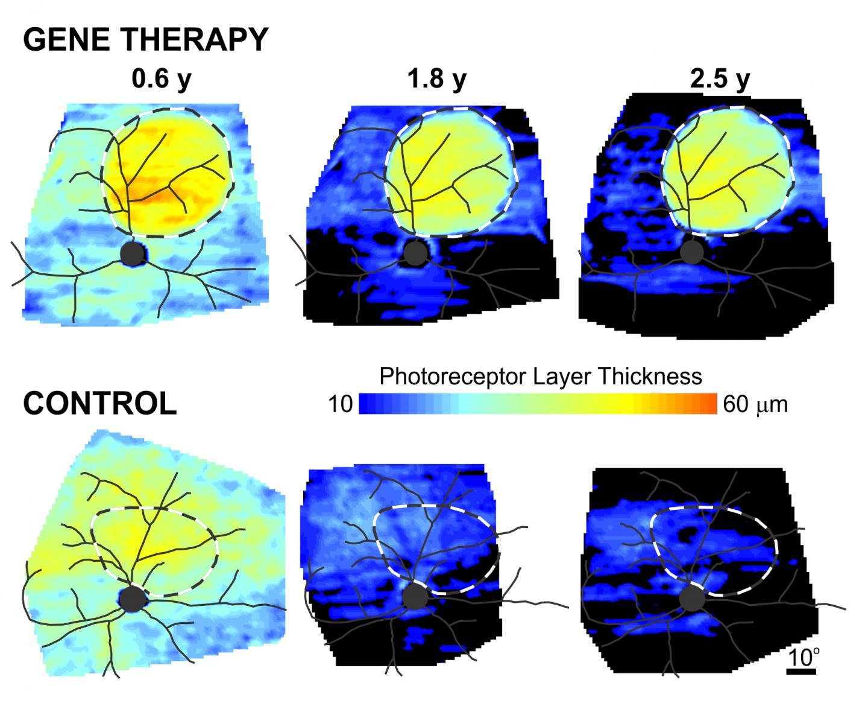 Gene Therapy for X-Linked Retinitis Pigmentosa